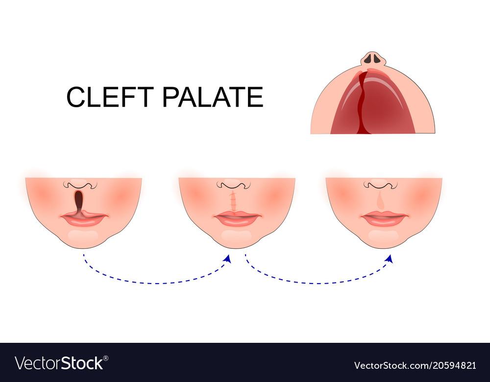 Cleft-Lip.jpg