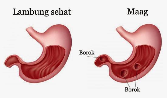 Gastritis-2.jpg
